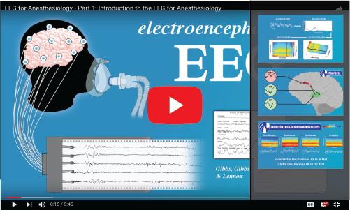 Education Resources – Clinical EEG for Anesthesia